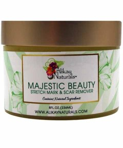 Alikay Naturals Majestic Beauty Stretch Mark And Scar Remover